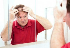 植发3天速成班 植发价格取决于患者的经济水平
