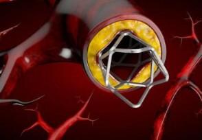 心脏支架医保报销比例 冠脉支架降到700元